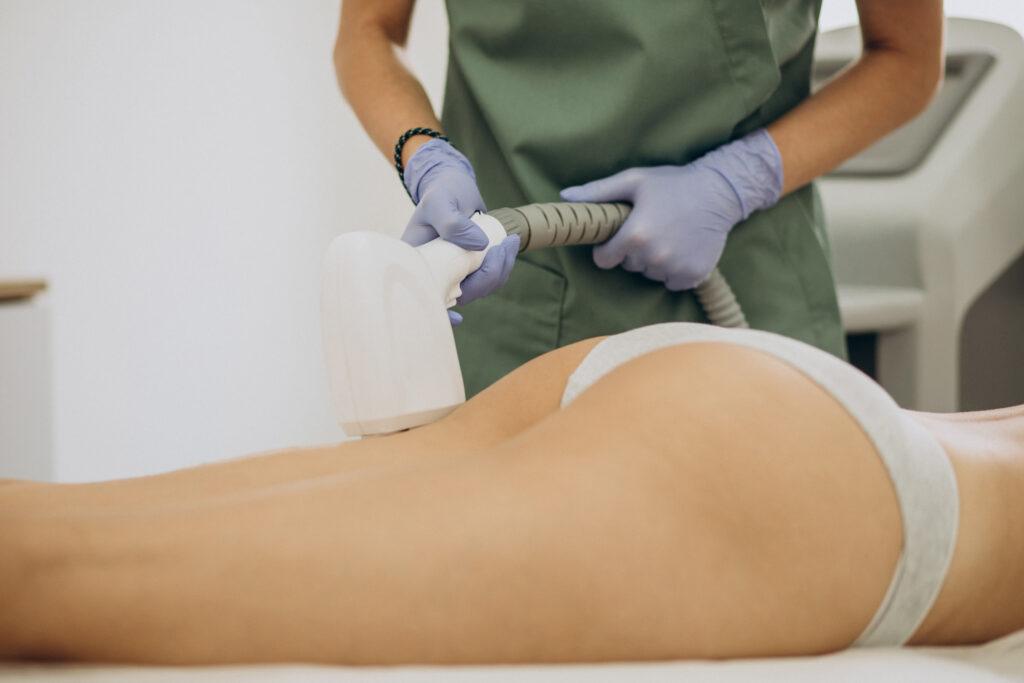 Laser depilazione intima
